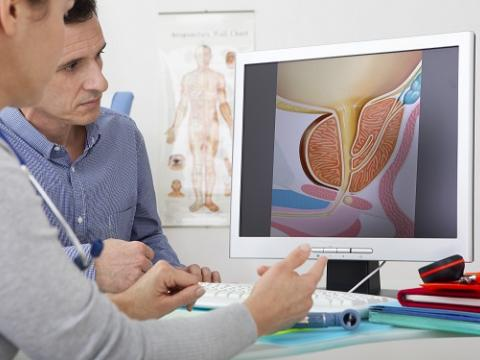 Увеличаване  на простатата