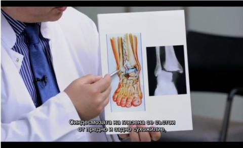 Диагностициране при травма на синдесмозата