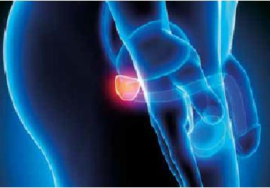 Învingeți cancerul de prostată cu diagnosticul precoce