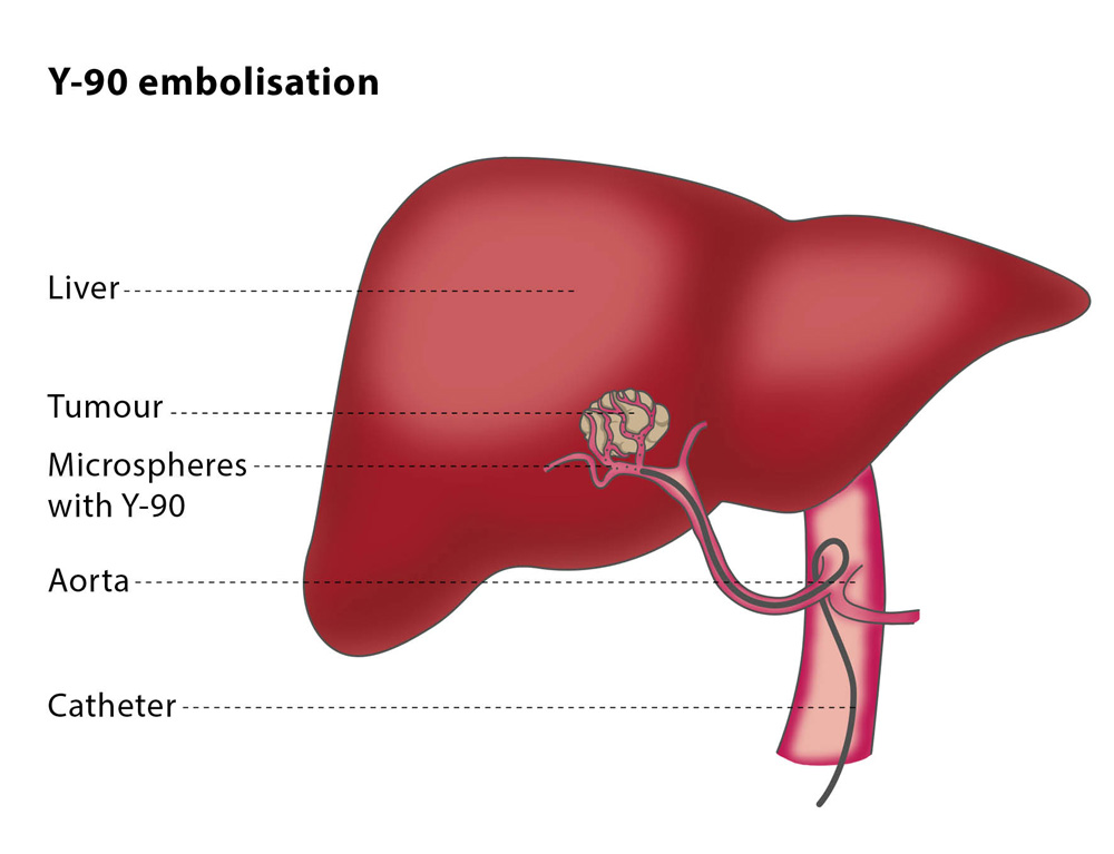 Радиоэмболизация для рака печени