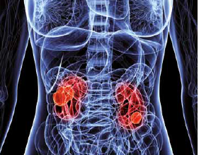 Kidney cancers are known to be diagnosed accidentally