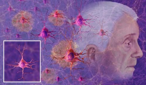New diagnostic method for Alzheimer's disease